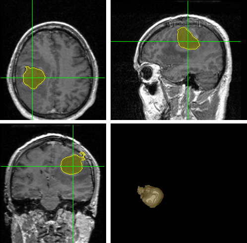 Various brain tumor detection techniques essay